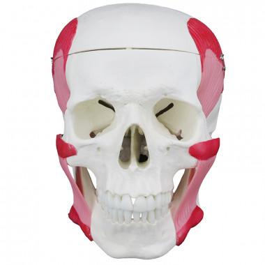 Crânio Humano com Mandíbula Móvel e Músculos da Mastigação