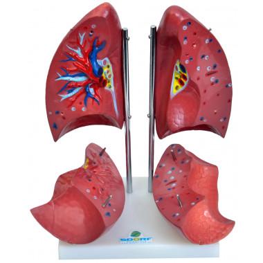 Pulmão Segmentado em 4 Partes