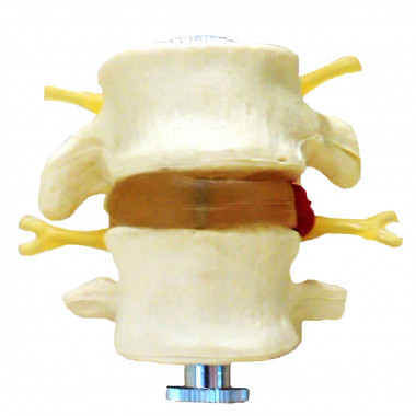 Modelo 2 Vértebras Lombares 2 Peças em tamanho natural