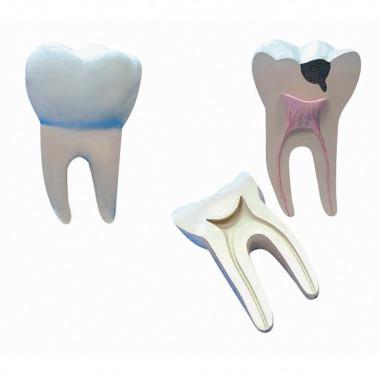 Dente Molar Ampliado - Saudável e com Cáries Modelo Anatômico