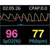 Sistema de Diagnóstico do Sono Portátil YH-600 A Pro