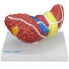 Modelo Patológico do Fígado e Vesícula Biliar